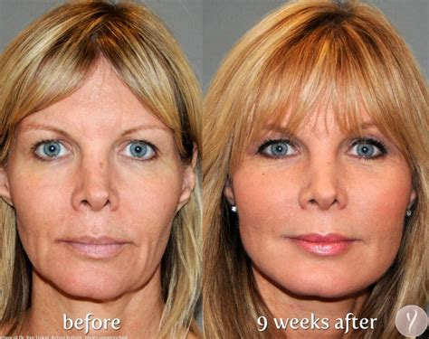 the miracle y lift non surgical face lift in michigan