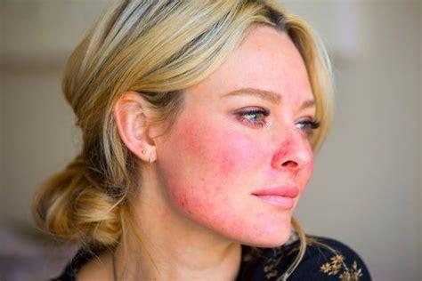 rosacea alimentazione rosacea cause sintomi e terapia myskin dermatologi