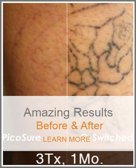 tattoo removal raleigh renewal removal safe fast complete removal