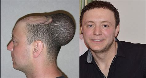 new hair transplant technology before and after balloon wrassman m d baldingblog