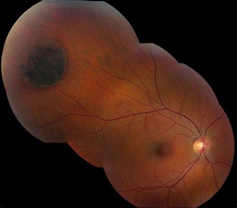fundus tumors retinal neoplasms