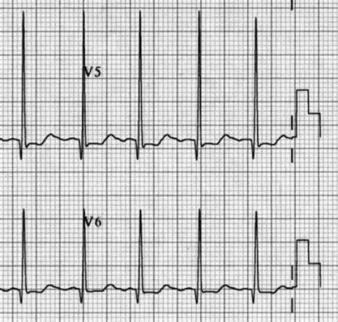 pattern recognition ecg pattern recognition in paediatric ecgs the hidden secrets