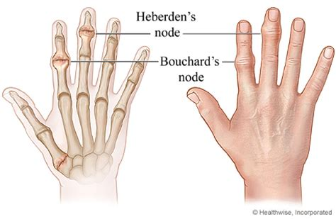 Bony Knobs On Finger Joints by Heberden S Nodes Osteoarthritis