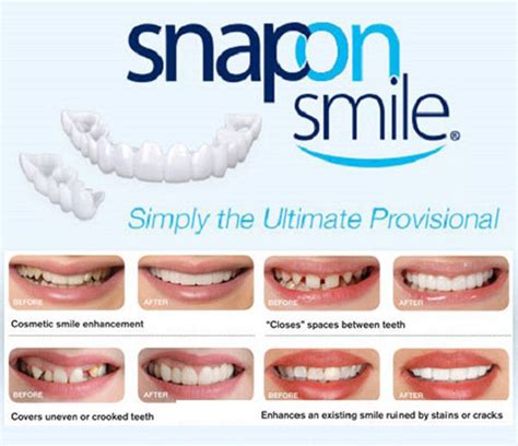 snap on smile hot water cosmetic dentistry snap on instant perfect smile comfort