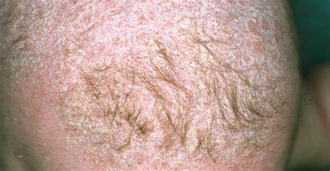 urticaria cuero cabelludo se me cae el pelo tratar un eczema en el cuero cabelludo