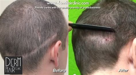 how to style hair to hide hair transplant scar follicular unit extraction using ugraft for covering strip