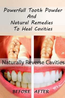 powerful tooth powder & natural rememdies to heal cavities