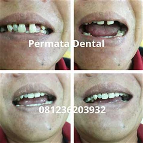 Jual Pemutih Gigi Permanen ahli gigi jember permata dental jual gigi palsu murah implant permanen bongkar pasang