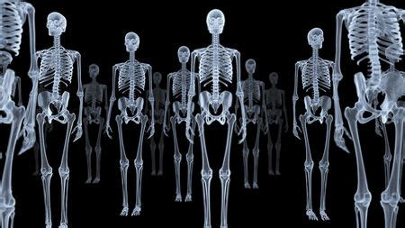x ray 'ghost images' could cut radiation doses   science