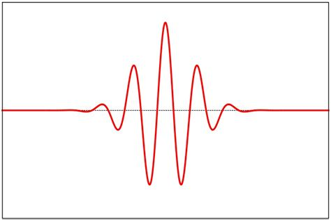 Is This Pulse pulse symbol critical journal