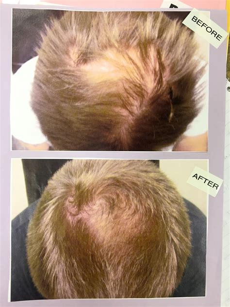 low level light therapy hair laser therapy for hair loss pictures photos