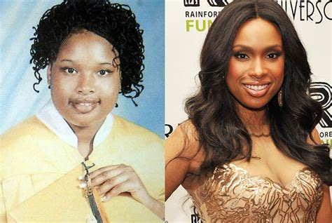 Ill Plastic Surgery Hollyscoop by 393 Best Images About Before Afters On