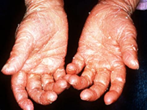 ichthyosis images ichthyosis pictures symptoms causes and treatment