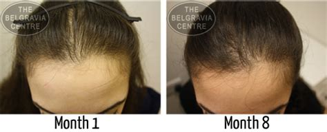 diffuse pattern hair loss hair growth success excellent service