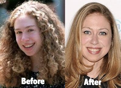 did hillary clinton have plastic surgery 2015 chelsea clinton plastic surgery before and after photos