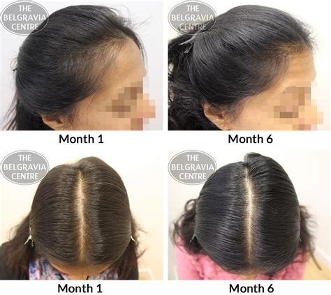 pictures of female pattern hair loss female pattern hair loss pictures photos