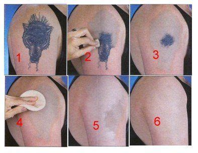 pittsburgh tattoo removal pittsburgh removal in bridgeville pa pittsburgh