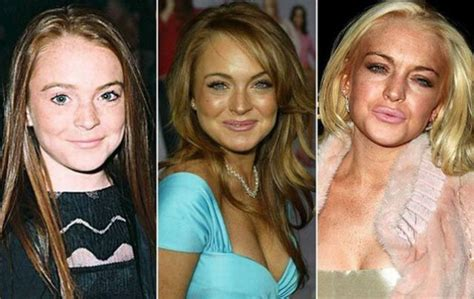 46 eye opening photos of celebrities then and now