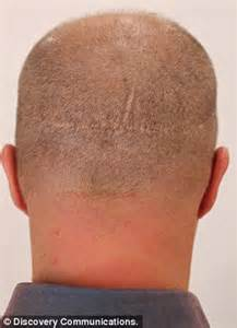shaved head hair transplant scar pictures failed hair transplant left me disfigured man has head