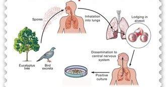 Obat Herbal Sesak Nafas Pada Ayam obat psittacosis tradisional