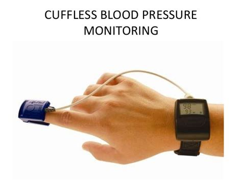 wide swings in blood pressure cuffless blood pressure monitoring project