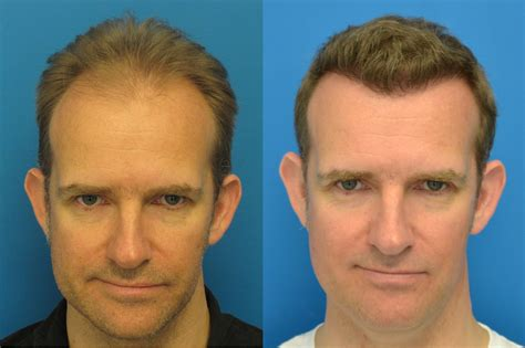 who does fut hair transplant in ohio hair transplant photo results 4507 grafts hasson wong