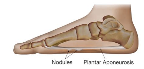 Planters Fibromatosis by Plantar Fibromatosis Affiliated Foot And Ankle Surgeons