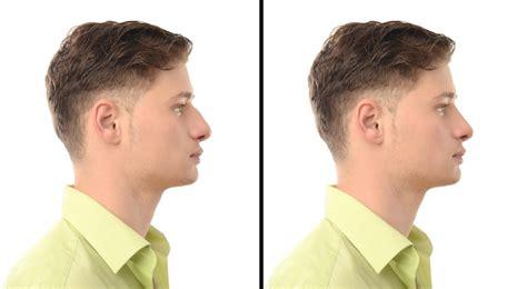 si鑒e v駘o avant rhinoplastie et septoplastie centre montpelli 233 de
