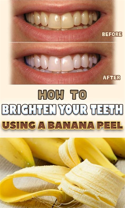 7 Reasons To Get Your Teeth Whitening Procedure Done By A Pro by Best 25 Banana Teeth Whitening Ideas On Is