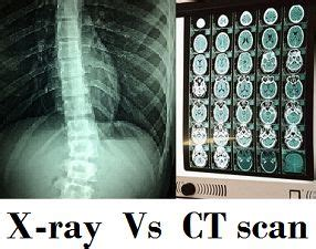difference between x ray and ct scan (with comparison