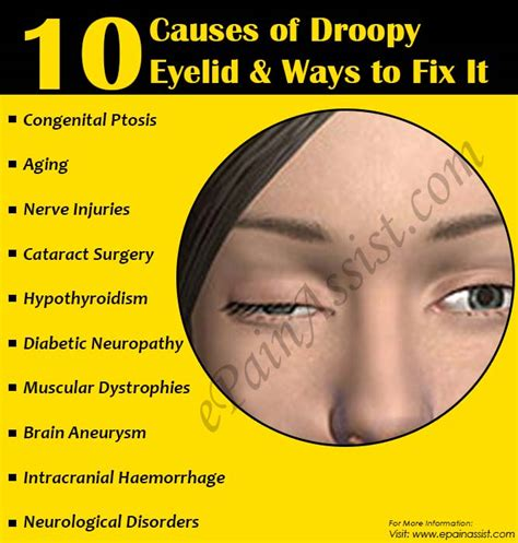 Mcgowans Droopy Eye Problem by Ptosis 10 Causes Of Droopy Eyelid Ways To Fix It