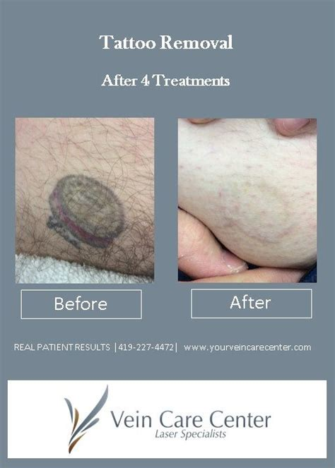 bleeding after laser tattoo removal removal before after pictures lima auglaize
