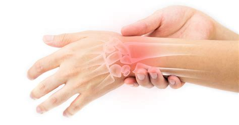 Handgelenk Bilder by Repetitive Strain Injuries Canadian Union Of