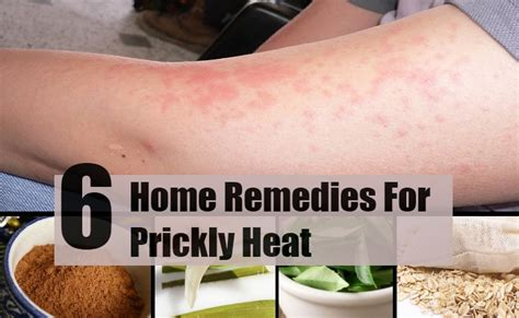 prickly heat home remedies treatments and cure