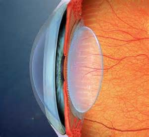 eye lens light adjustable lens how eye implants can be finely