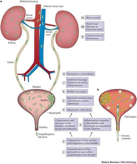 Rheumatoid Arthritis And Proteus 25 best ideas about proteus mirabilis on