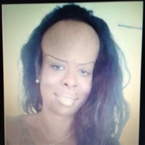 Messed Up Hairline - messed up hair lines memes
