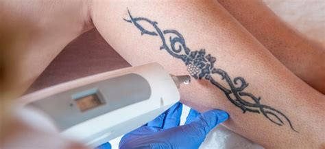 tattoo removal how long calgary laser removal how until you see