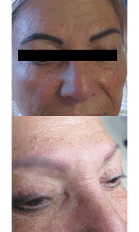remove eyebrow tattoo removal solution all saline removal