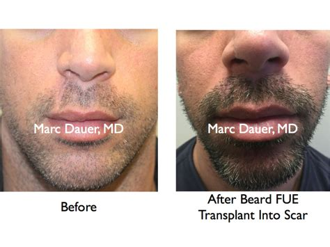 hair restoration before and after pictures clevens face hair transplants before and after photos los angeles hair