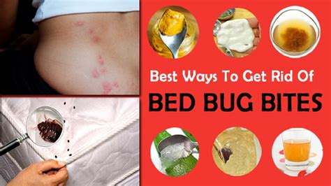 home remedies for getting rid of bed bugs how to treat bed bug bites with home remedy youtube