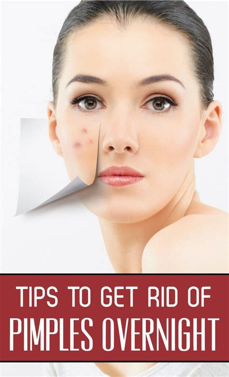 How To Get Rid Of Detox Acne Fast by 17 Best Ideas About Pimples Overnight On Clear