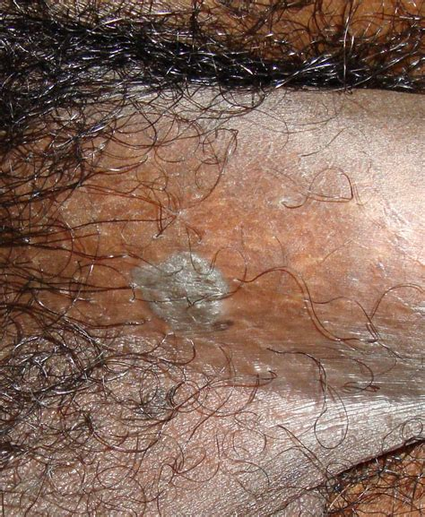 genital wart genital warts related keywords genital warts long tail