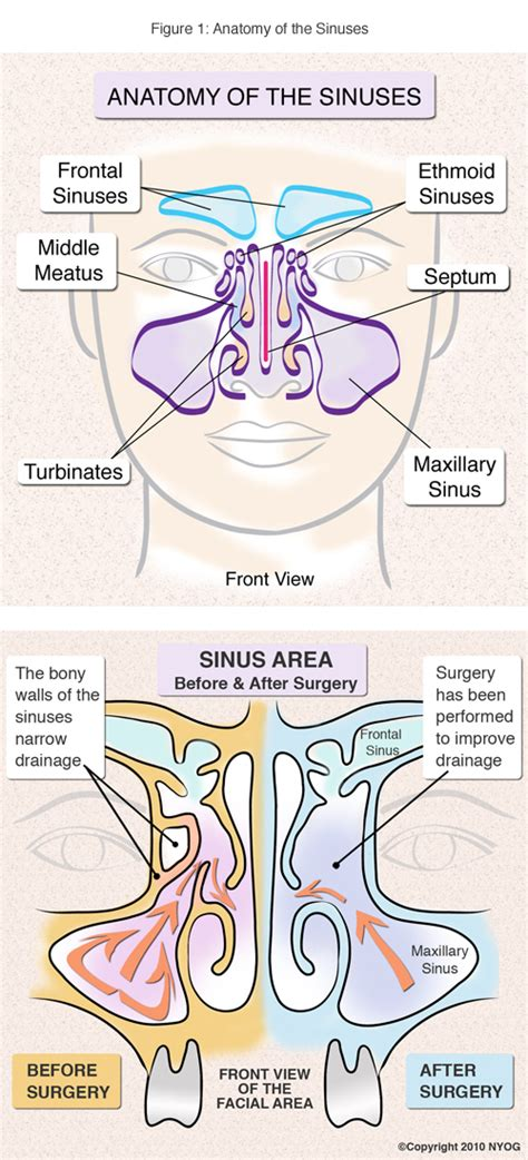 diagram of the sinuses photo sinuses of diagram