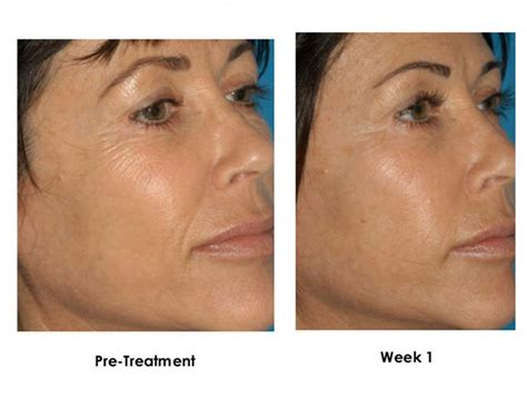 micro needling tattoo removal what to expect after your micro needling treatment