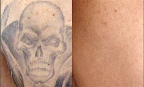 100 laser tattoo removal aesthetic services 100 2017 new picosecond laser tattoo laser tattoo
