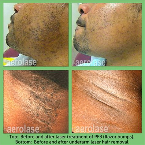 tattoo removal african american skin aerolase technology transforms skin of color laser