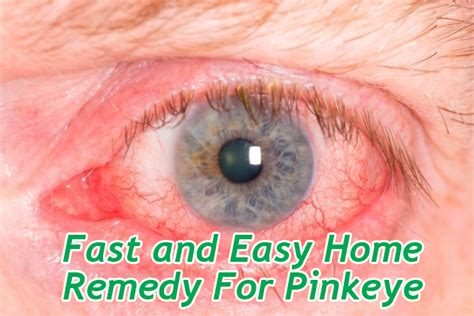 how to treat pink eye with home remedies