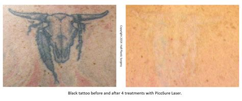 hindsight tattoo removal 100 picosure removal pictures to hindsight