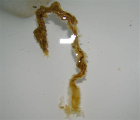 What Do Worms Look Like In Human Stool by Parasite Cleanse Number 5 Getting Out Nests Of Parasites